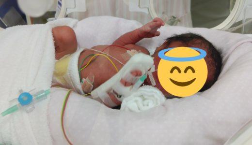 緊急帝王切開にてMD双子出産(当日の様子)